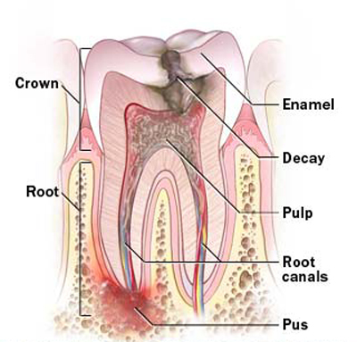 Why Do We Need Root Canal Treatment